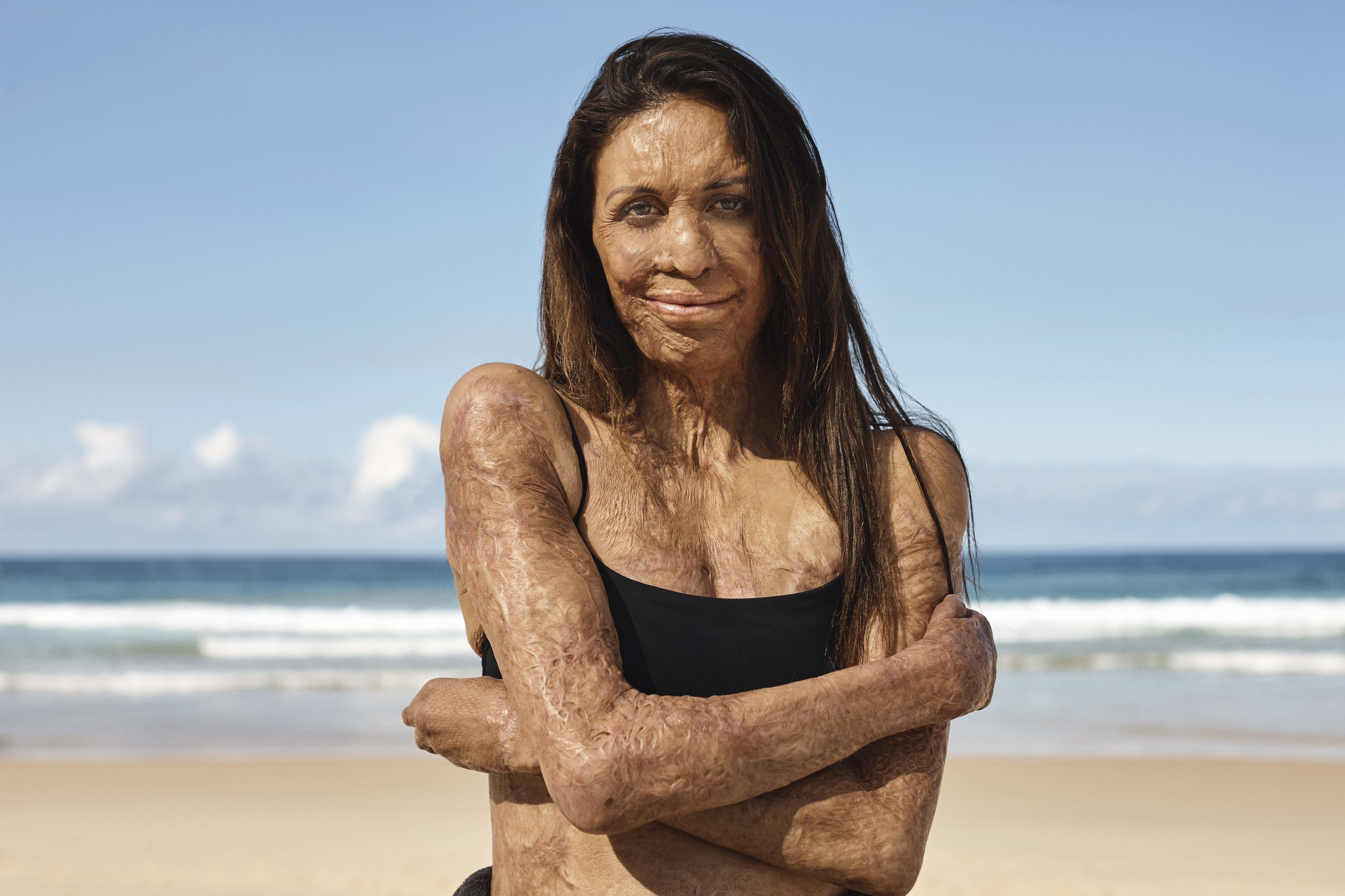 Turia Pitt champions Avène's 'Strong Sensitive' positioning in first campaign via SLIK