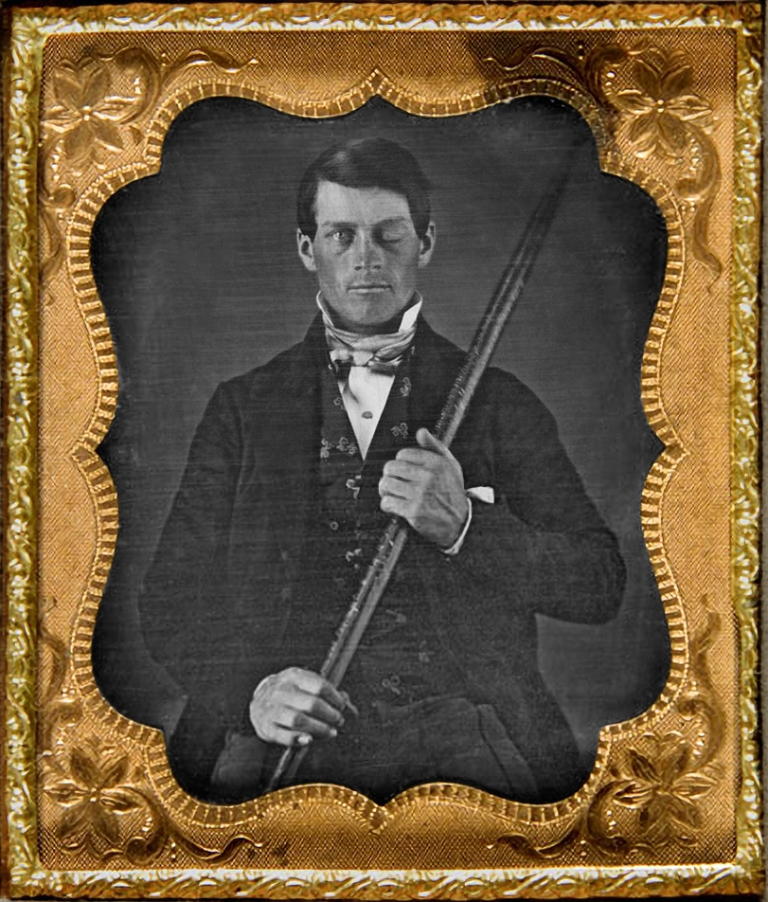Damon Stapleton: Advertising. Phineas Gage is a strange story we should all know