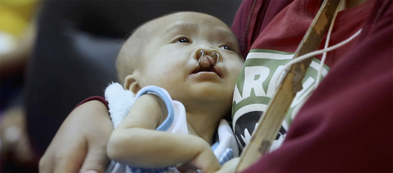Thanonchai Sornsriwichai films the story of a man born with a cleft lip in moving BBDO Bangkok campaign for Operation Smile