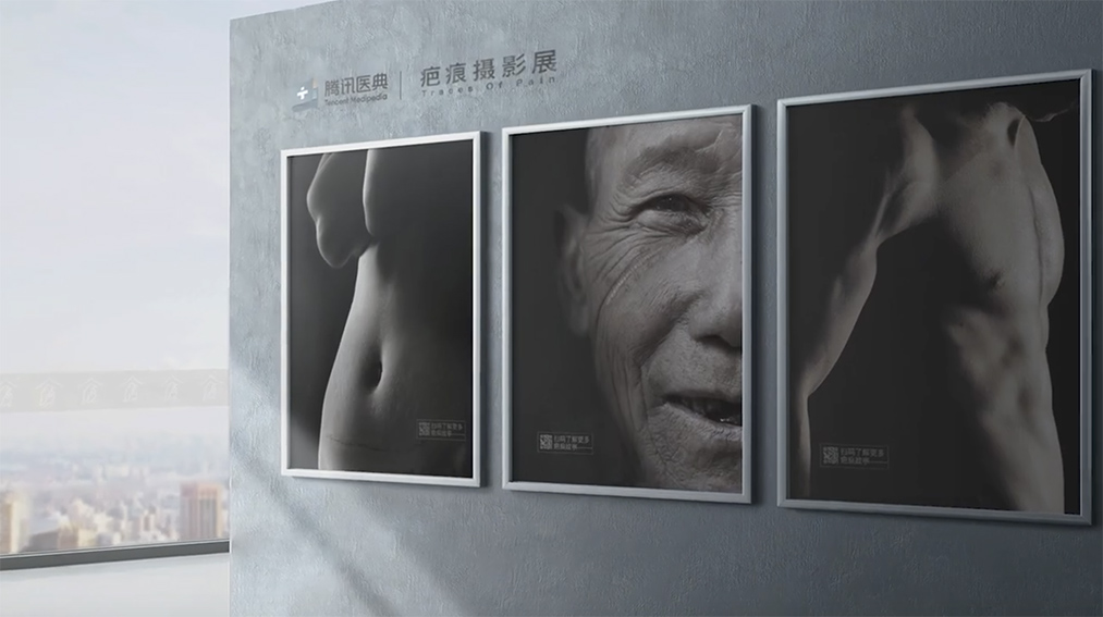Tencent Shenzhen launches digital photography exhibition 'Traces of Pain' telling the struggles of mutilation and scars patients